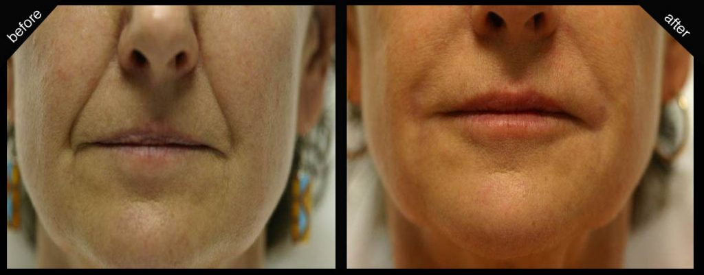 Juvederm Before and After Pics