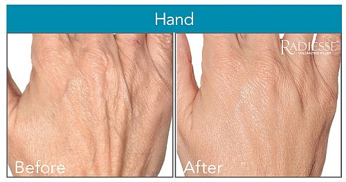 Radiesse Hand